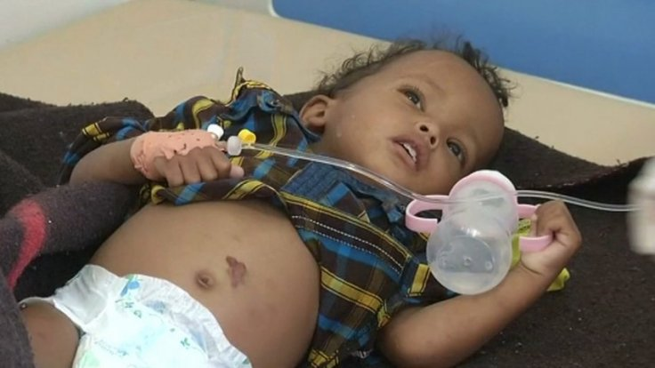 Yemen cholera epidemic spreads with nearly 250,000 infected