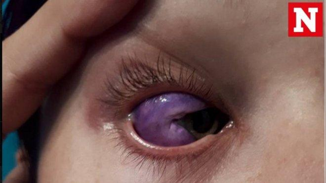 Bizarre eyeball tattoo leaves Canadian model partially blind