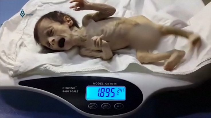 Heartbreaking footage shows extent of child malnutrition in conflict-ridden Syria