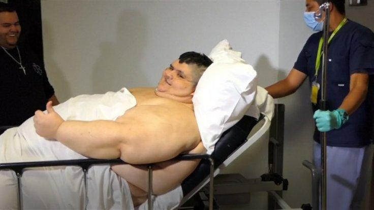 Worlds fattest man has surgery to halve his weight