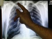 New method to combat Tuberculosis
