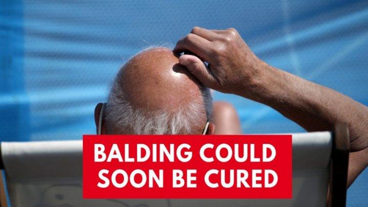 New hair loss treatment could cure balding