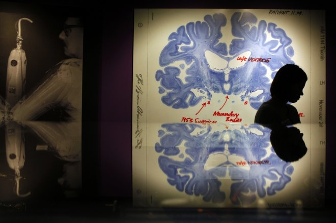 A woman walks past a display of a brain slice of patient