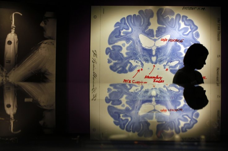 "A woman walks past a display of a brain slice of patient ""H.M."" at the press preview for the MIT 150 Exhibition at the MIT Museum"