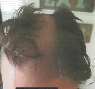 Photo of haircut