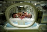 Conjoined twins Haneen and Farah are seen in an incubator at a hospital in Gaza