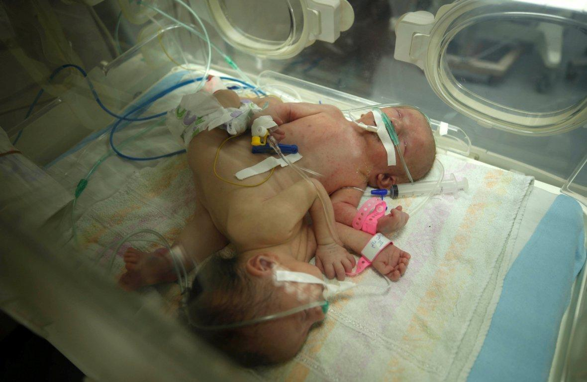 Conjoined twins Haneen and Farah are seen in an incubator at a hospital in Gaza City