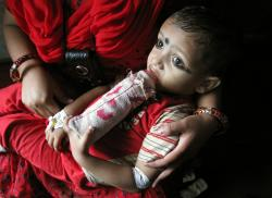 A baby suffering from Thalassemia