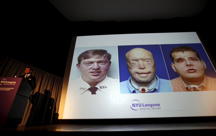 Conference on Face transplant