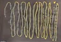 9 foot tapeworm