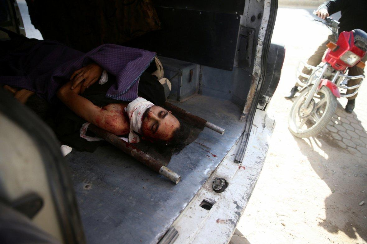 Damascus, SyriaAn injured man lies on a stretcher after a strike on the rebel held besieged city of Douma, in the eastern Damascus suburb of Ghouta, Syria