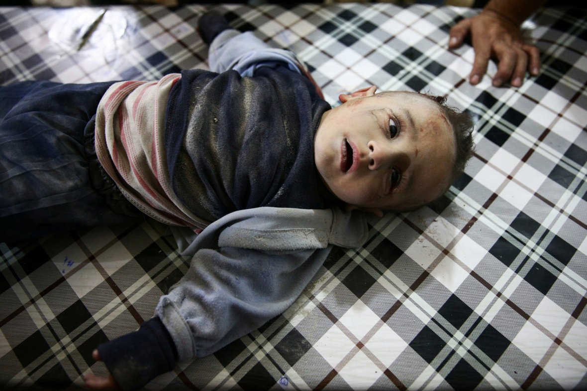 Damascus, SyriaAn injured boy lies in a field hospital after a strike on the rebel held besieged city of Douma, in the eastern Damascus suburb of Ghouta, Syria