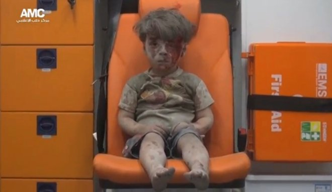 Syria: An injured boy is seen sitting in an ambulance after an airstrike