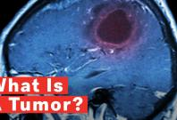 what-is-a-tumor
