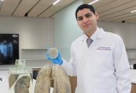 Research on lung disease bronchiectasis