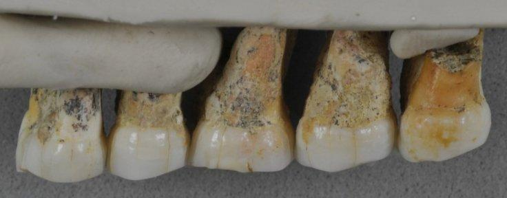 The teeth bones recovered from Callao Caves of the Philippines island of Luzon display characteristics of early humans as well as modern humans. From left: Two premolars and three molars.Courtesy: Callao Cave Archaeology Project