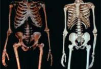 Neanderthal (left) and a modern human (right)