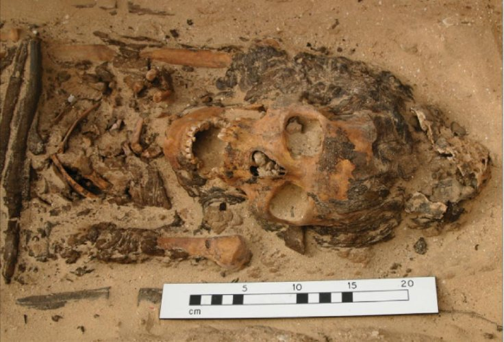 Excavations at the ancient Egyptian city of Amarna uncovered the skeleton of a woman in her 20s who was buried wearing a cone-shaped cap that likely held spiritual significance, researchers say.