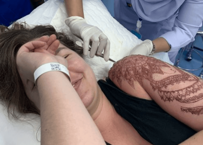 Tourist suffers chemical burn from black henna