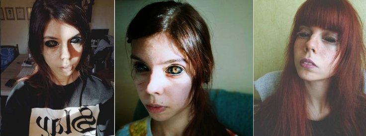Polish model Aleksandra Sadowska loses eyesight after her eyeball tattoo