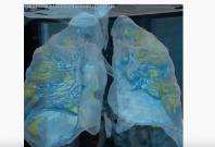Coronavirus lungs 3D graphics by GW University
