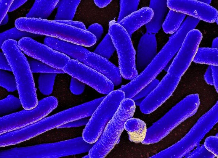 E- Coli Bacteria