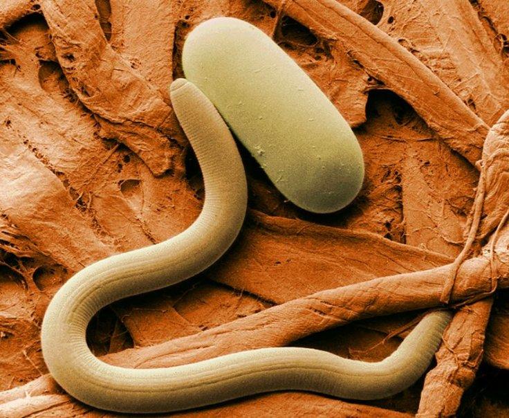 Roundworm