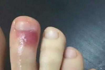 Foot sores