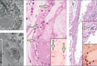 Viral infection in lining of blood vessels