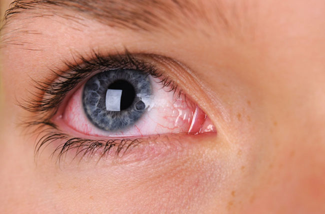 New Fact: Eyes can be a source of infection and also replication ...