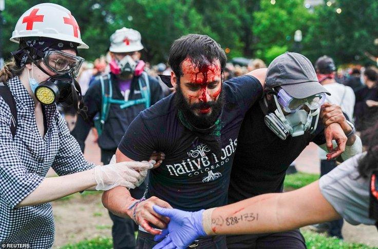 Protester injured