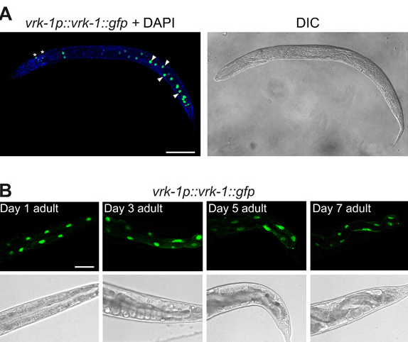 VRK-1 is a nuclear protein that increases worm life span
