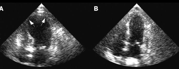 Echocardiogram in BHS