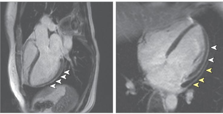 Heart damage in coronavirus patients