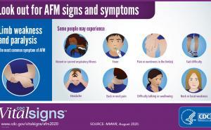 AFM symptoms