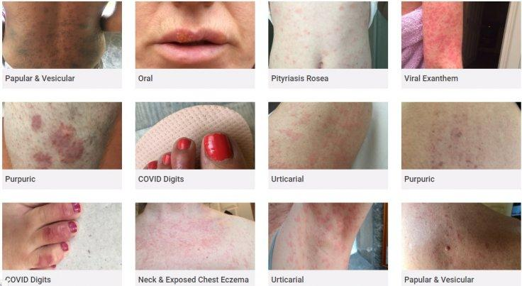 COVID-19 rashes