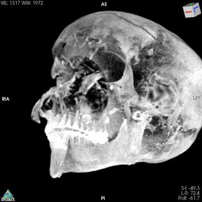 3D Virtual Reality image of the pharaohs skull