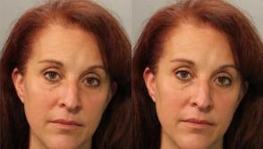 Florida Woman Jailed For Coughing on Cancer Patient