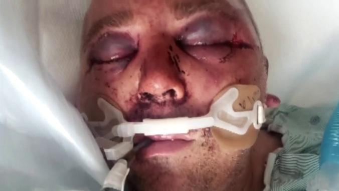 Frank Penkava in hospital
