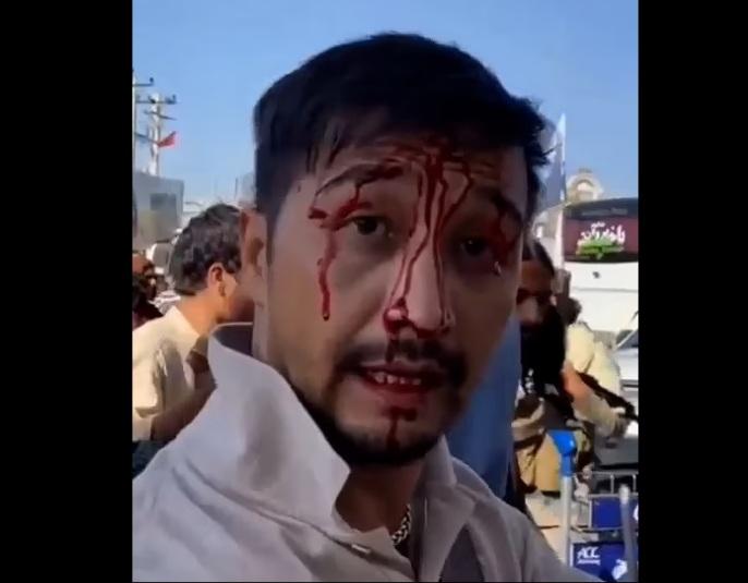 Australian man beaten by Taliban