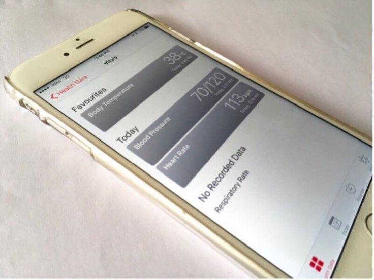 Monitoring blood glucose levels using sensors
